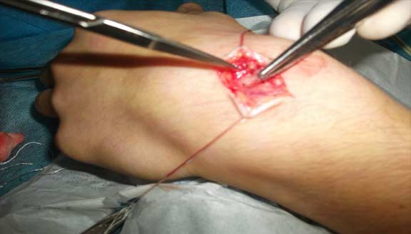"""Ganglion cyst treat """"G-Relief Removes ganglion cysts from the inside"""