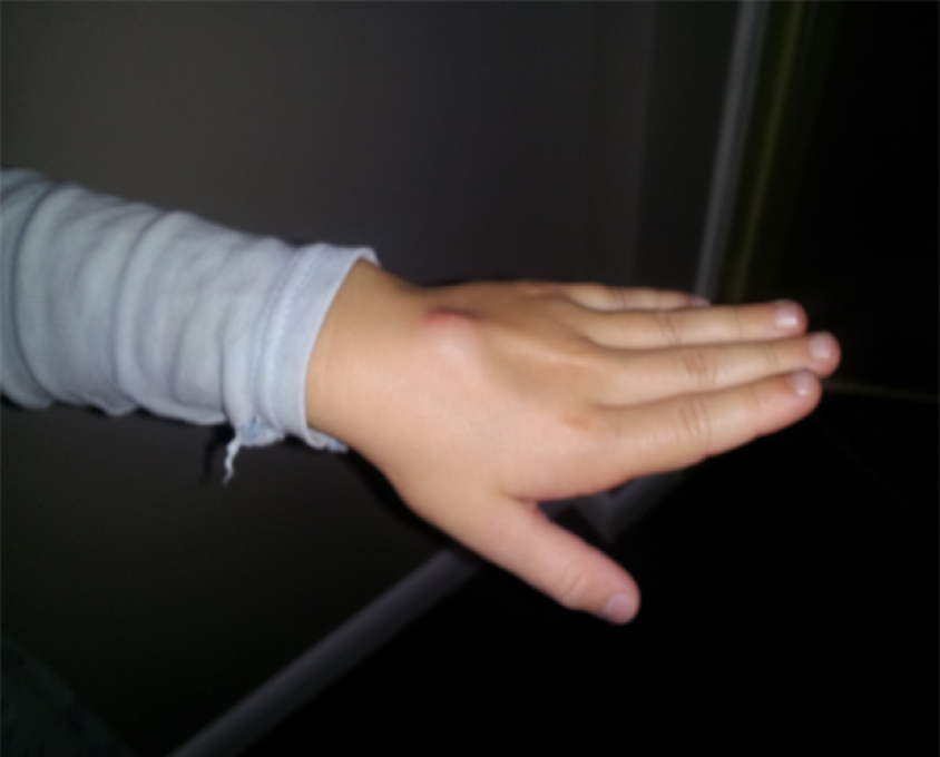 6 year old girls ganglion cyst cured with g-relief® - capsules, Skeleton