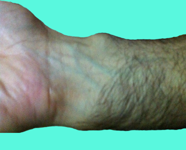 how to get rid of a ganglion cyst naturally