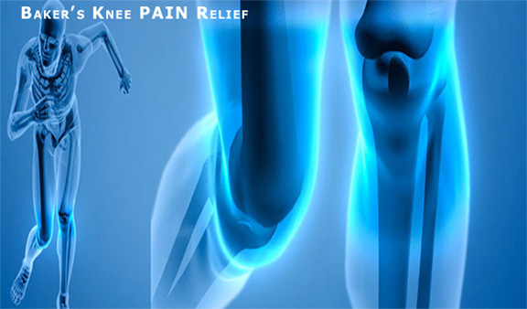 B-Relief Capsules. Alternative to Baker's Knee Cyst Surgery. 100% Natural 0% Recurrence Rate INFO bakerstreatment.com