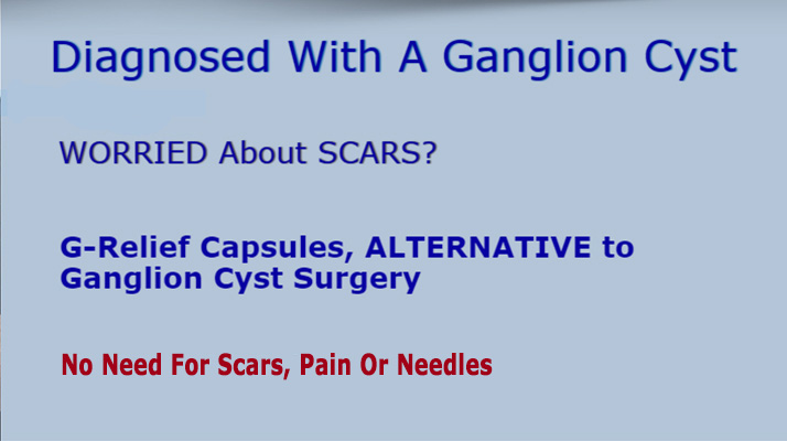 G-Relief Capsules. Alternative to ganglion cyst surgery. 100% Natural 0% Recurrance Rate INFO ganglioncysttreatment.com